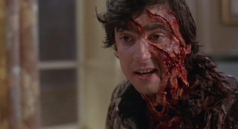 Grinnin Dunne as werewolf victim Jack Goodman in An American Werewolf in Londin (1981)